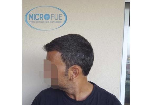 trapianto_di_capelli_Turchia_Microfue_foto_risultato_10