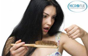 Calvizie alopecia femminile nel trapianto di capelli della donna
