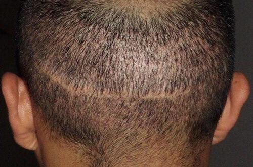 Coprire cicatrici sulla testa con il trapianto di capelli