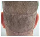 trapianto di capelli cicatrizzati FUT FUSS