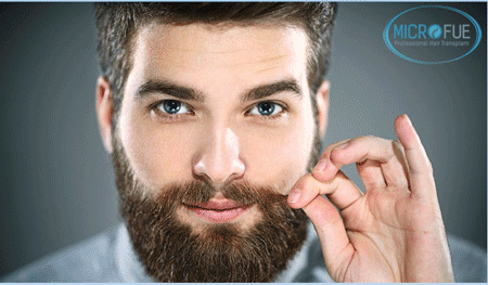Trapianto di peli del corpo Body Hair Transplant (BHT)
