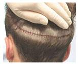 trapianto di capelli cicatrizzati FUT