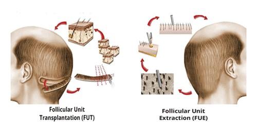 tecniche comparative trapianto di capelli FUE FUT FUSS