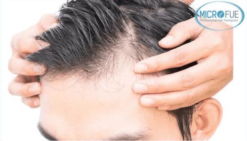 Cos'è un trapianto di capelli, le diverse tecniche