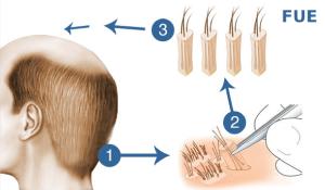 metodo di trapianto di capelli FUE Microfue