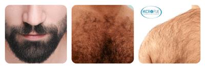 trapianto di capelli caporale Body Hair Transplant Microfue