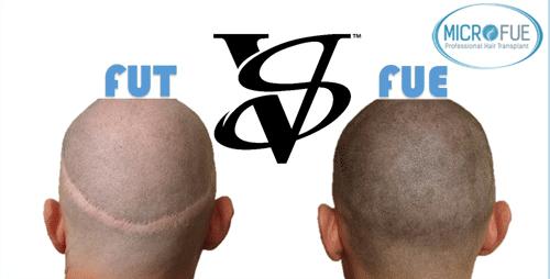 tecniche comparative trapianto di capelli FUE FUT FUSS Microfue
