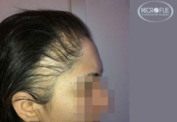 trapianto-di-capelli-femminile-in-turchia-microfue_0