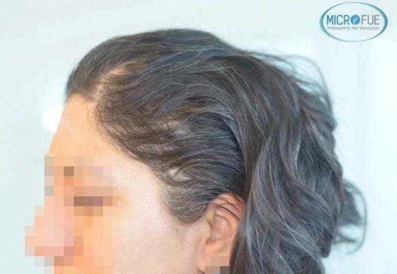 trapianto-di-capelli-femminile-in-turchia-microfue_1