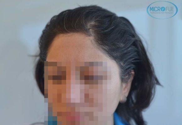 trapianto-di-capelli-femminile-in-turchia-microfue_02