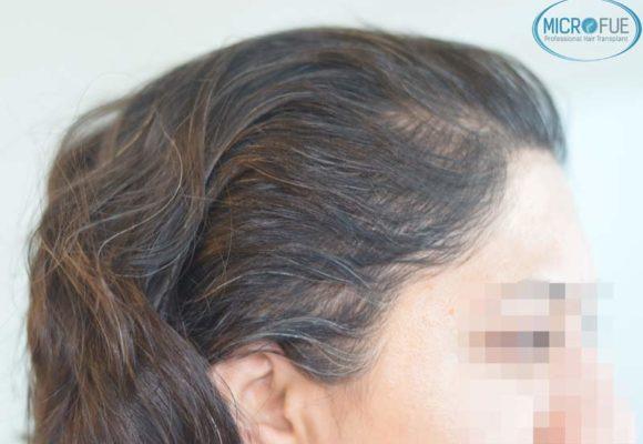 trapianto-di-capelli-femminile-in-turchia-microfue_03