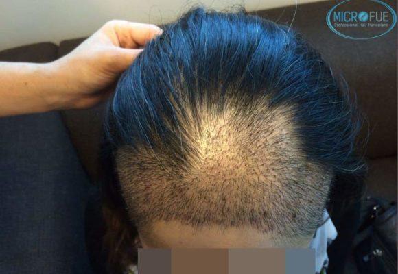 trapianto-di-capelli-femminile-in-turchia-microfue_08
