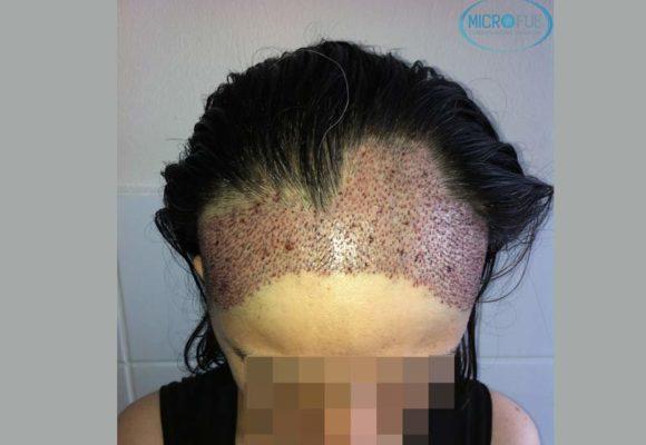 trapianto-di-capelli-femminile-in-turchia-microfue_11