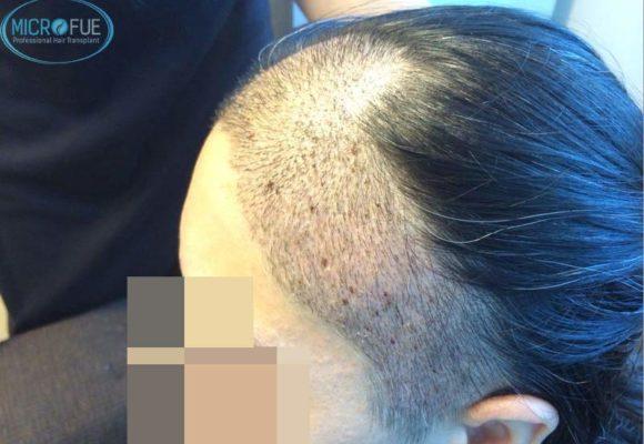 trapianto-di-capelli-femminile-in-turchia-microfue_13