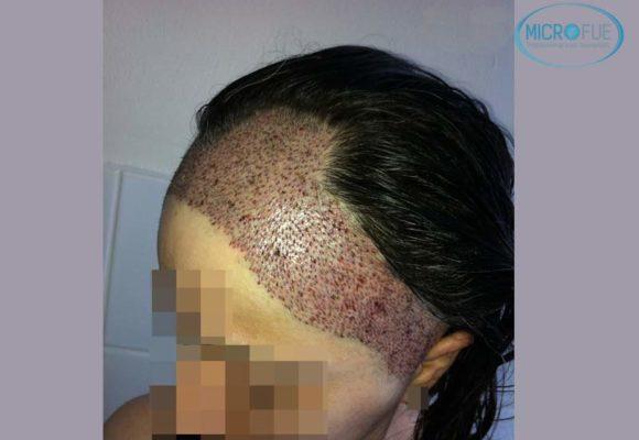 trapianto-di-capelli-femminile-in-turchia-microfue_14