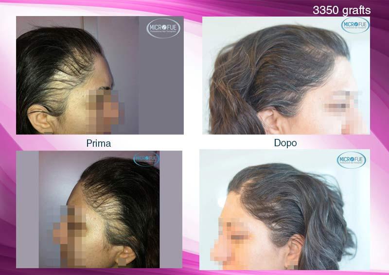 trapianto-di-capelli-femminile-in-turchia-microfue