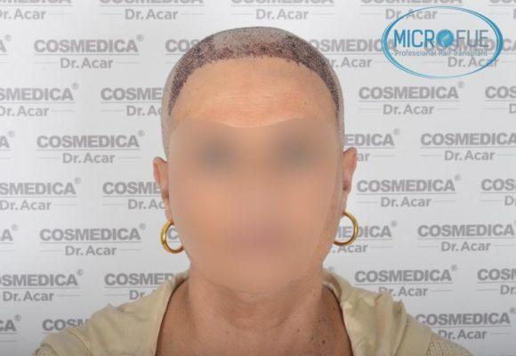 trapianto_capillare_donne_femminile_Turchia_Microfue_11