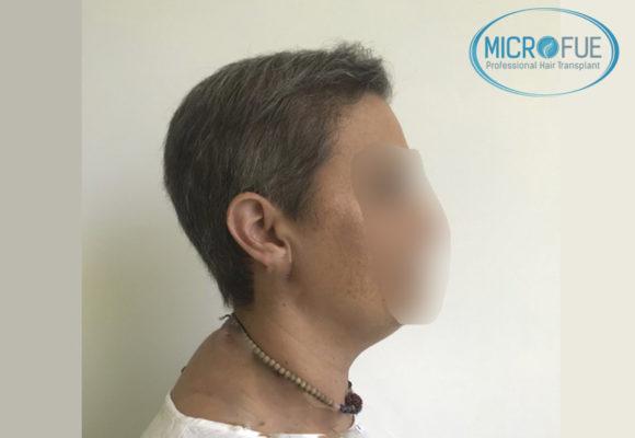 trapianto di capelli femminile Turchia Microfue foto di prima e dopo