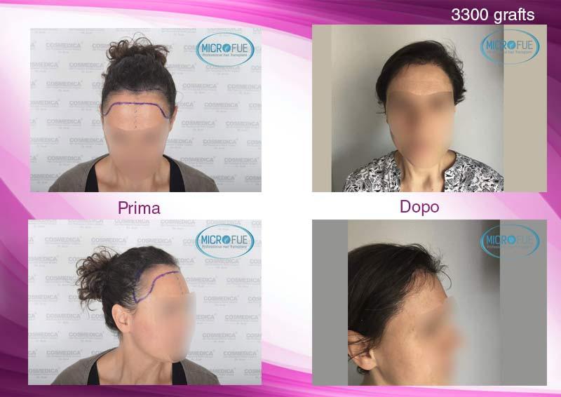 trapianto_di_capelli_femminile_per_le_donne_risultati_Turchia_Microfue