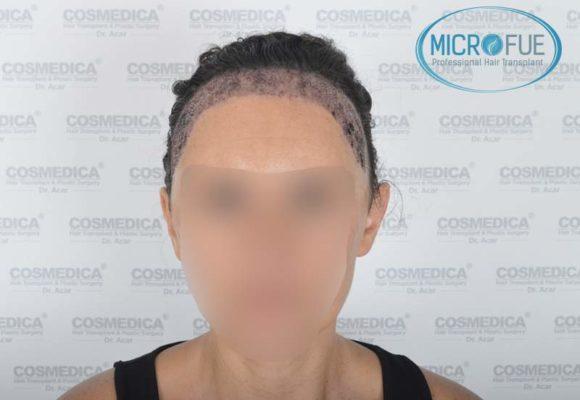 trapianto_di_capelli_femminile_risultati_Turchia_Microfue_05