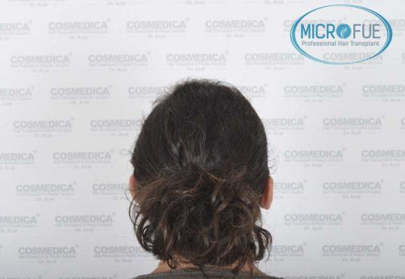 trapianto_di_capelli_femminile_risultati_Turchia_Microfue_06