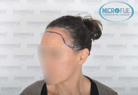 trapianto_di_capelli_femminile_risultati_Turchia_Microfue_08