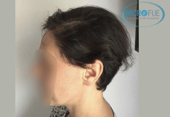 trapianto_di_capelli_femminile_risultati_Turchia_Microfue_12