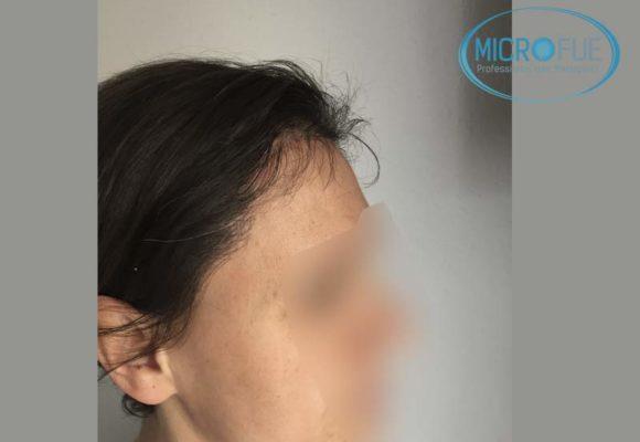 trapianto_di_capelli_femminile_risultati_Turchia_Microfue_13