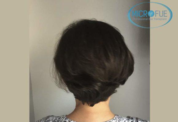 trapianto_di_capelli_femminile_risultati_Turchia_Microfue_15
