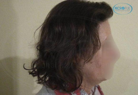 donne trapianto di capelli Turchia Microfue foto di prima e dopo