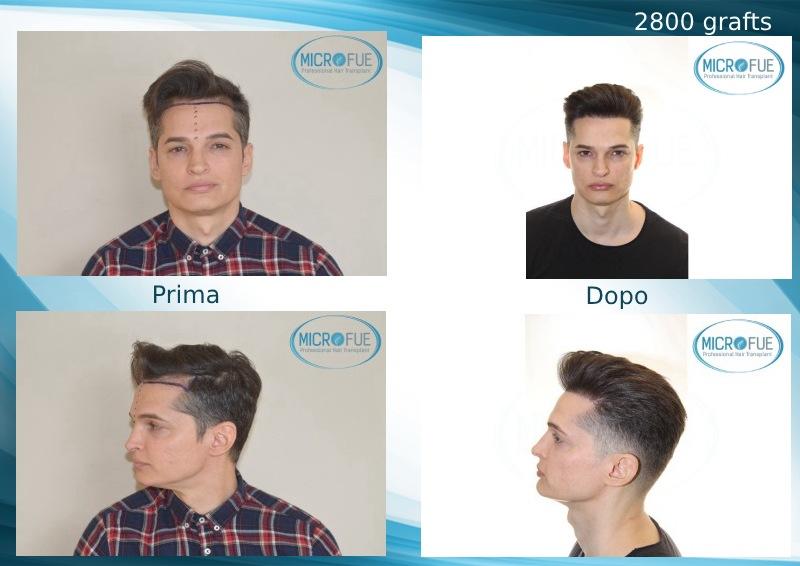 Ottimo risultato nel trapianto di capelli (1)