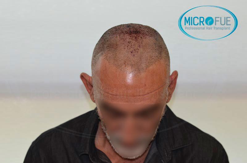 Risultati-del-secondo-intervento-di-trapianto-di-capelli-Microfue-in-Turchia-11