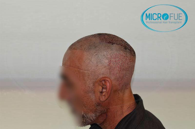 Risultati-del-secondo-intervento-di-trapianto-di-capelli-in-Turchia-10