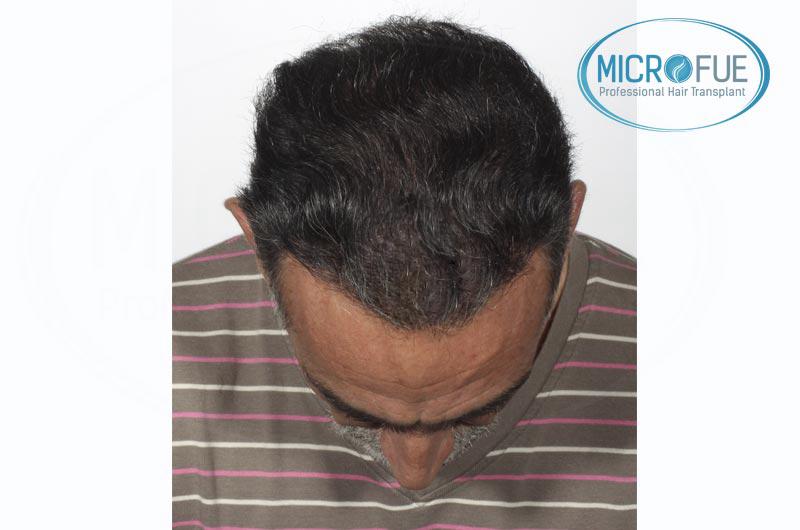 Risultati del secondo intervento di trapianto di capelli in Turchia (3)