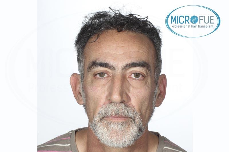 Risultati del secondo intervento di trapianto di capelli in Turchia (5)