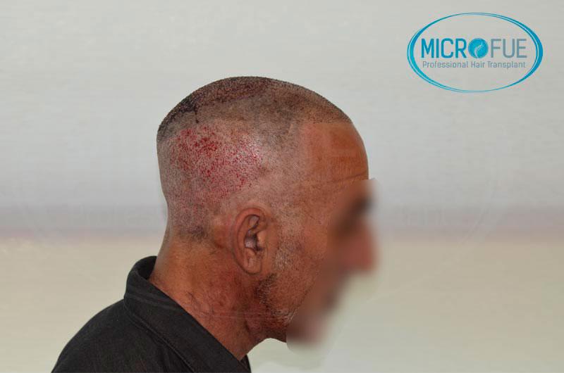 Risultati-del-secondo-intervento-di-trapianto-di-capelli-in-Turchia-9
