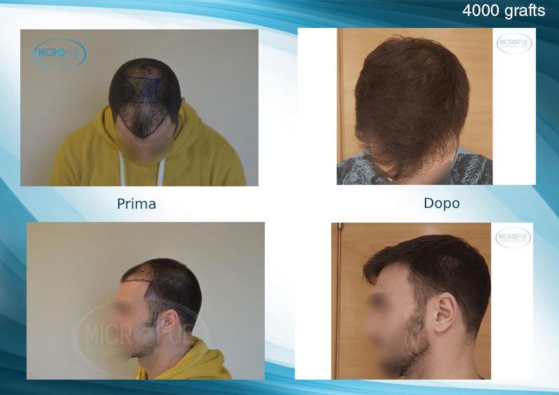 Risultati del trapianto di capelli in Turchia FUE Microfue (1)