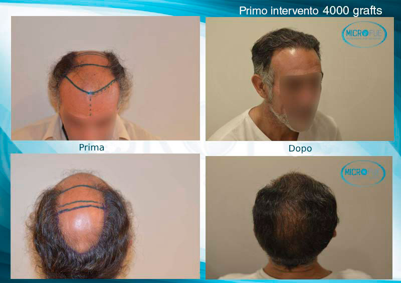 Trapianto_capelli_prima_dopo_Microfue_Turchia_primo_intervento_