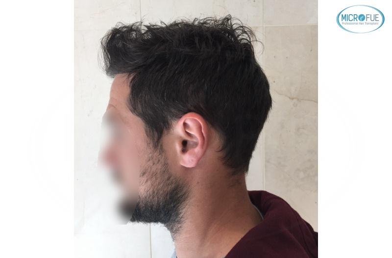 casi di trapianti di capelli in Turchia (1)