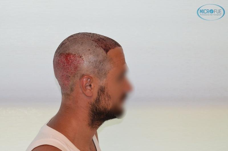 casi di trapianti di capelli in Turchia (11)
