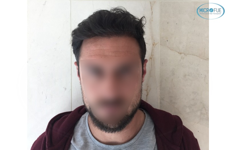 casi di trapianti di capelli in Turchia (13)