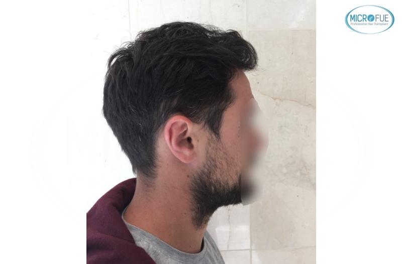 casi di trapianti di capelli in Turchia (15)