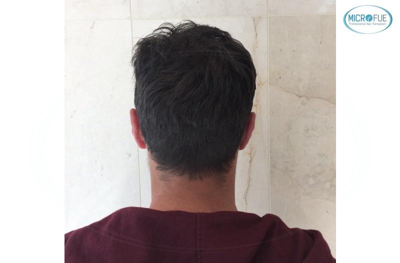 casi di trapianti di capelli in Turchia (17)