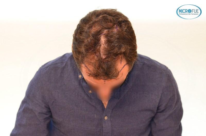casi di trapianti di capelli in Turchia (2)