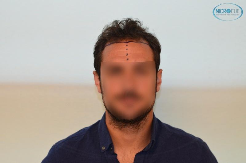 casi di trapianti di capelli in Turchia (4)