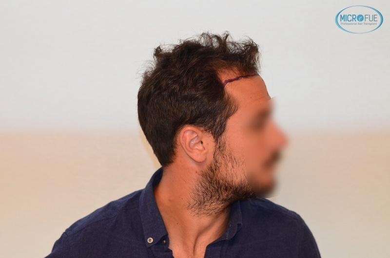 casi di trapianti di capelli in Turchia (6)