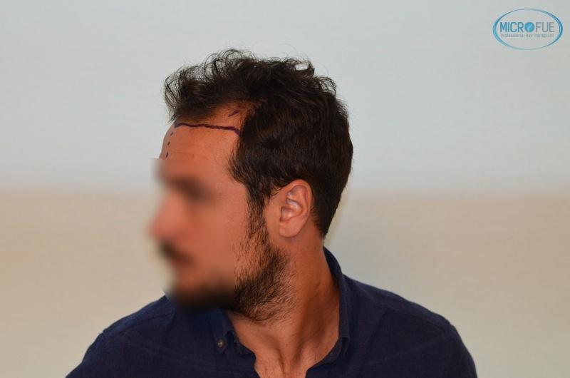 casi di trapianti di capelli in Turchia (7)