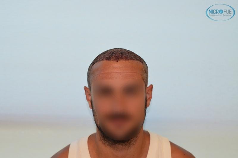 casi di trapianti di capelli in Turchia (8)
