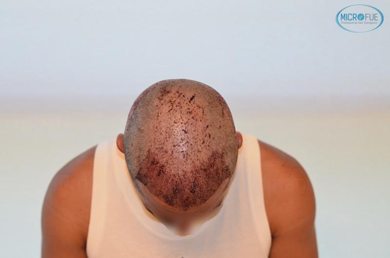 casi di trapianti di capelli in Turchia (9)