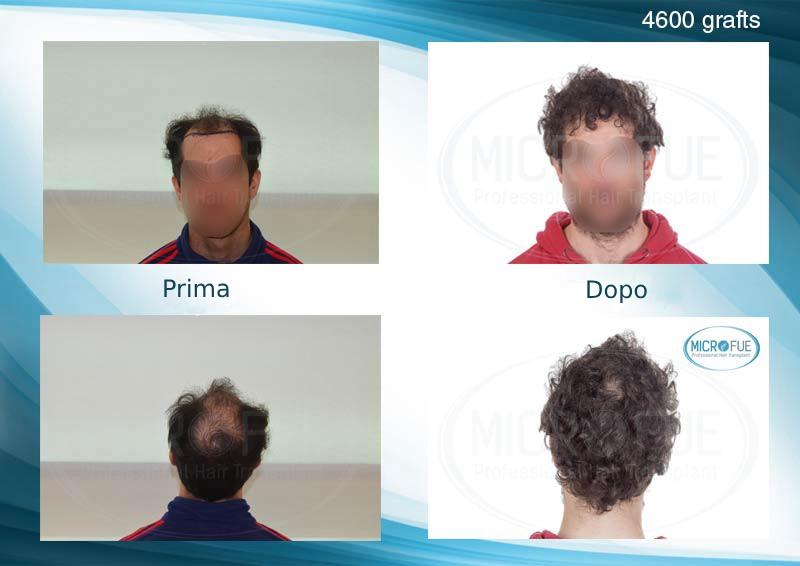 foto dei risultati del trapianto di capelli in Turchia Microfue (11_)